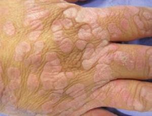 Lesiones verrucosas en Epidermodisplásia verruciforme