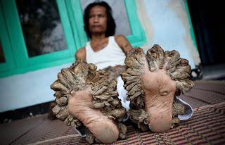 """""""Hombre árbol"""" de Indonesia, visión de los pies."""