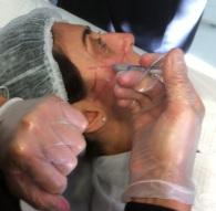 Inyección profunda sobre hueso malar, para realce de pómulos con Hidroxiapatita Cálcica