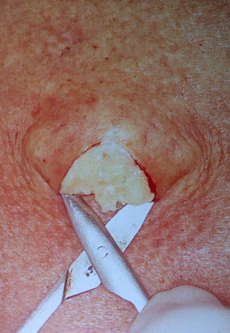 Culo en la pulga - 2 part 1