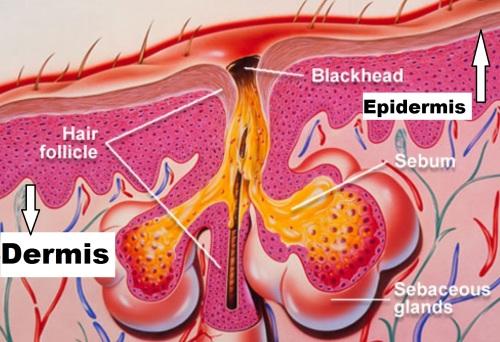 Glándula sebácea y folículo de pelo: unidad pilosebácea.