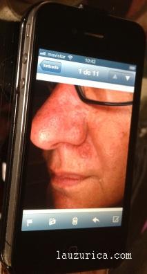 Carcinoma basocelular en pantalla de iPhone