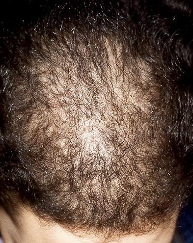 La tintura del pimiento struchkovogo para el crecimiento de los cabello con el aceite de ricino