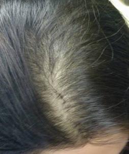 Paciente con alopecia androgenética femenina con grado I de Ludwig avanzado