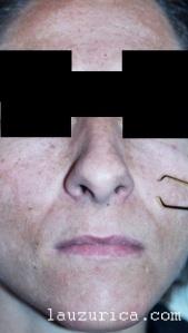 Paciente con melasma en toda la cara
