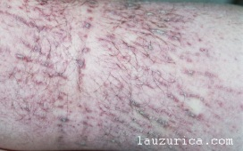 Lesiones lineales en rodilla