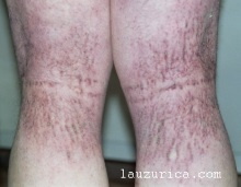 Lesiones de rodillas