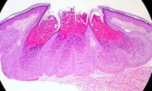 Molluscum contagiosum al microscopio óptico.