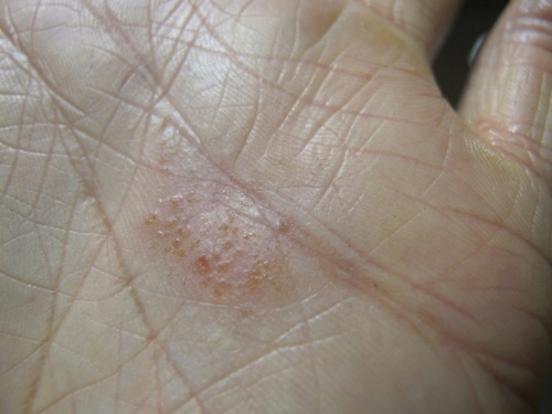 Placa de vesículas de eczema dishidrótico