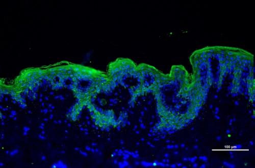 Biopsia de piel. Inmunofluorescencia