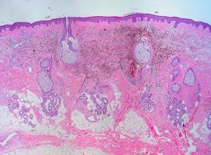 Biopsia de piel. Nevus azul