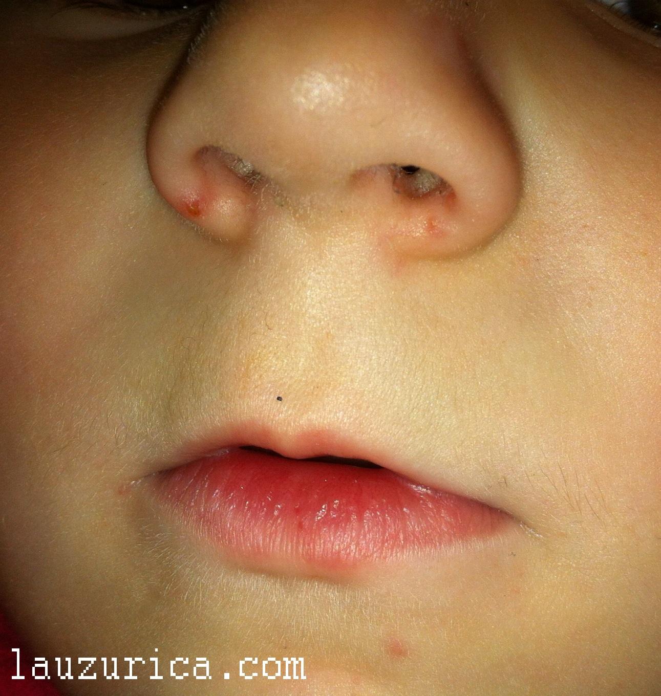 Granulomatous perioral dermatitis