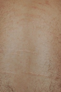 Síndrome de Marfan. Estrias cutaneas.