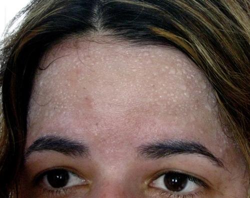 Aumento del sudor en frente típico de la hiperhidrosis craneofacial