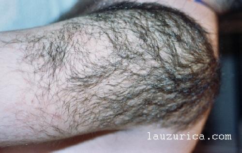 Piel de gallina y hamartoma de músculo liso. Afectación de hombro y raíz de brazo por hamartoma con mucho pelo.