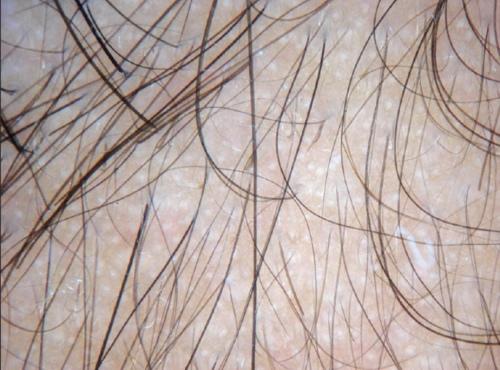 Alopecia androgenética masculina, la calvicie del varón. Tricoscopia