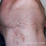 Reclutamiento de pelo, lejos de la zona de aplicación del láser