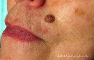Nevus de gran tamaño en labio