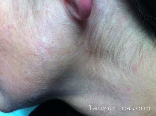 Hipertricosis en mandíbula y cuello