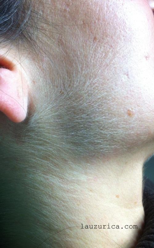 Aumento de vello en cara y cuello