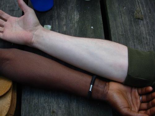 Melanina en cantidades distintas, según razas.