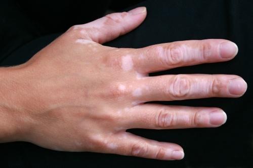 Acromia en mano por vitíligo