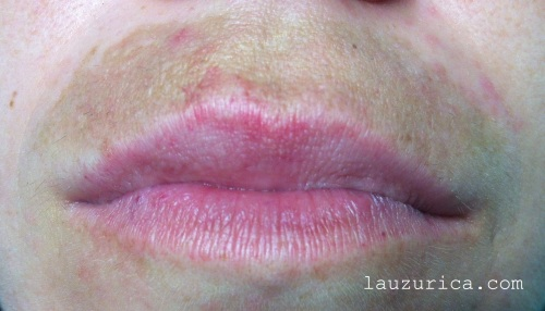 """""""Mancha del bigote"""", melasma de labio."""
