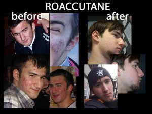 Roacutan (isotretinoina), eficaz y seguro.