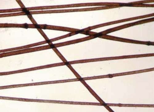 Tricorrexis invaginata, se observan los nudos típicos.
