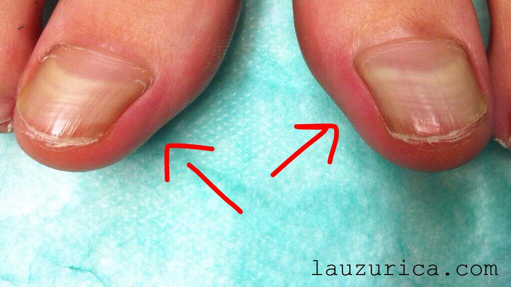 como mejorar las unas gruesas de los pies