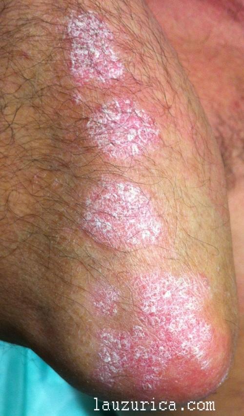 Placas de psoriasis en codos.