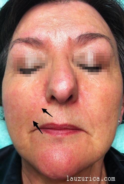 Disminución del surco nasogeniano derecho y ligera asimetría facial