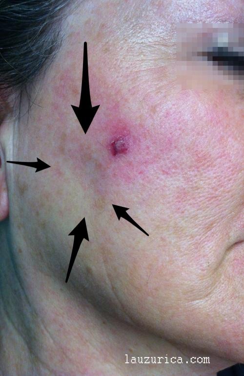 Hematoma y hundimiento facial