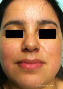 Aspecto con dos meses del tratamiento con ácido tranexámico