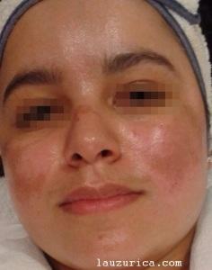 Melasma previo al tratamiento