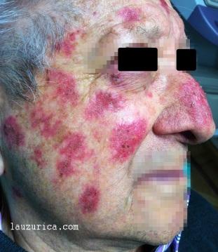 Parches inflamados selectivamente sobre zonas de queratosis actínicas.