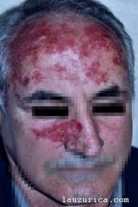 Grado máximo de inflamación a las 3 semanas del tratamiento. Daño selectivo de zonas afectadas (bordes geográficos).