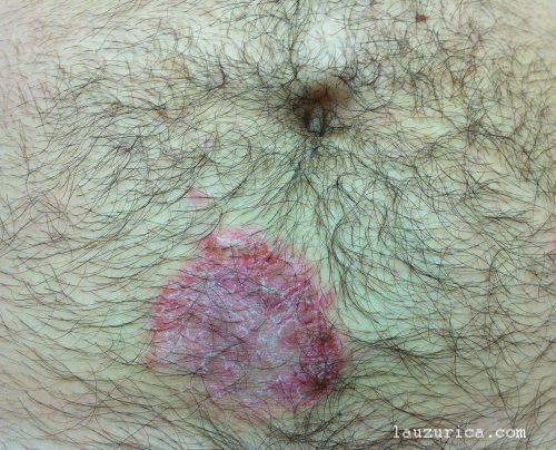 Eczema al níquel por contacto de hebilla metálica del pantalón
