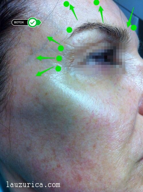 Botox en entrecejo, frente y