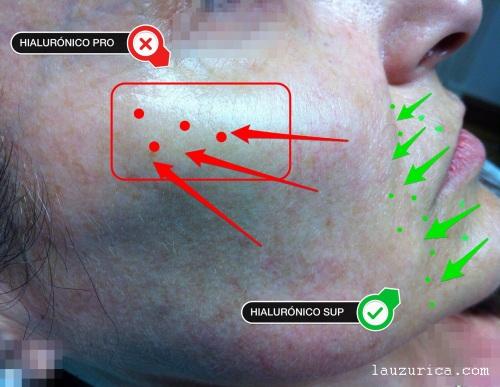 Ácido hialurónico en profundidad en pómulo y más superficial en tercio inferior.