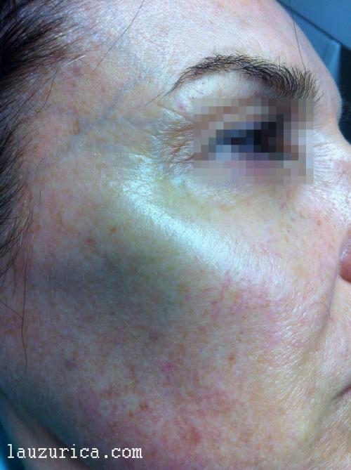 Alisado de arrugas de expresión, realce de pómulo y minoración de pliegues en tercio inferior.
