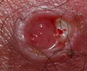 Úlcera a los 8 días de usar crema con Bloodroot