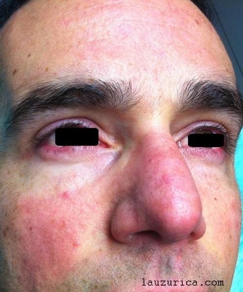Rosácea papulopustulosa con afectación ocular. Mejoría con tetraciclinas