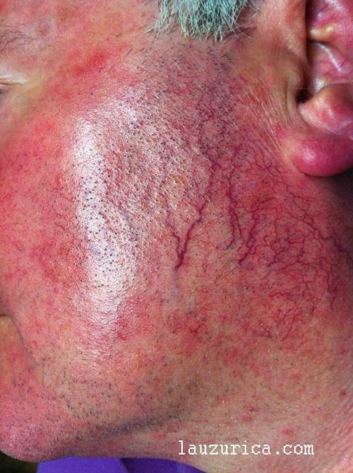 Rosácea eritematotelangiectásica. Gran componente vacular y afectación de pabellones auriculares