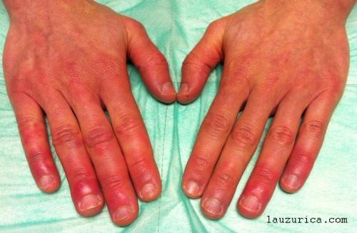 Sabañones en todos los dedos de la manos.