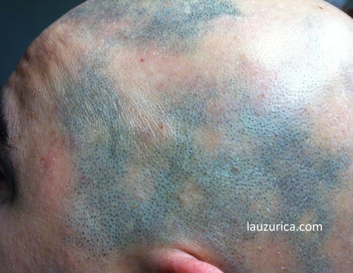 Alopecia areata multifocal