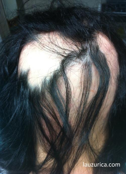 Alopecia areata de larga evolución, con mechones enrocados