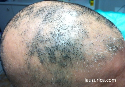 Comienzo de repoblación de alopecia multifocal
