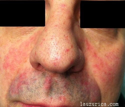De que hay una psoriasis sobre la cabeza