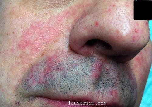 Dermatitis seboreica, detalle de la placa eritematodescamativa